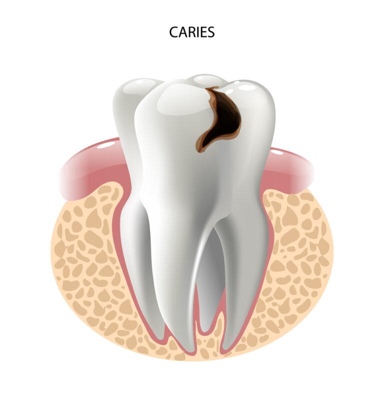 caries en la dentina