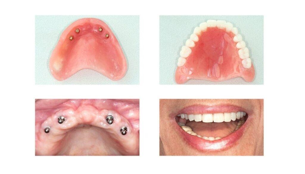 proceso implante dental
