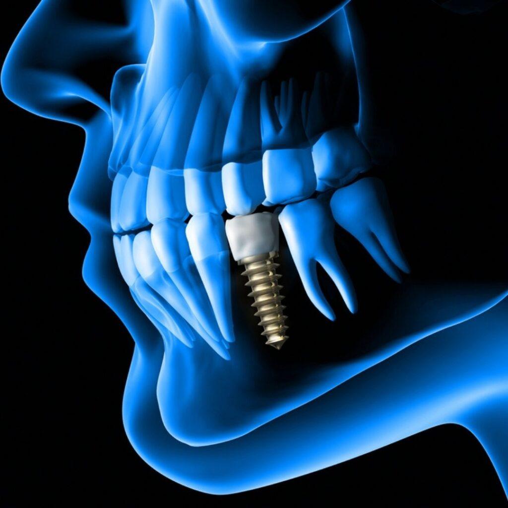 que es un implante dental