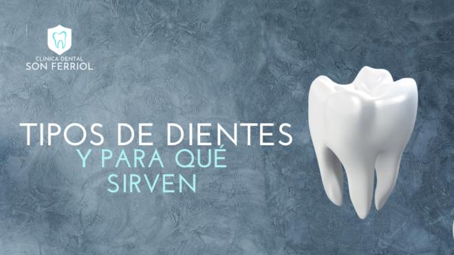 ¿Cuáles son las partes de los dientes?